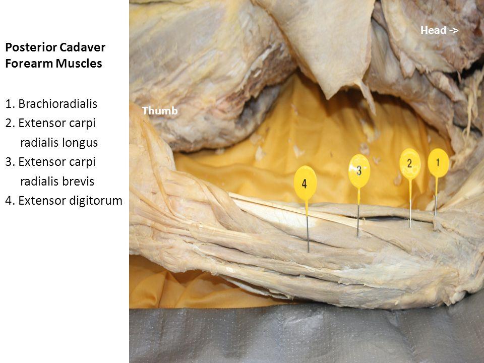 Posterior Cadaver Forearm Muscles 1.Brachioradialis 2.