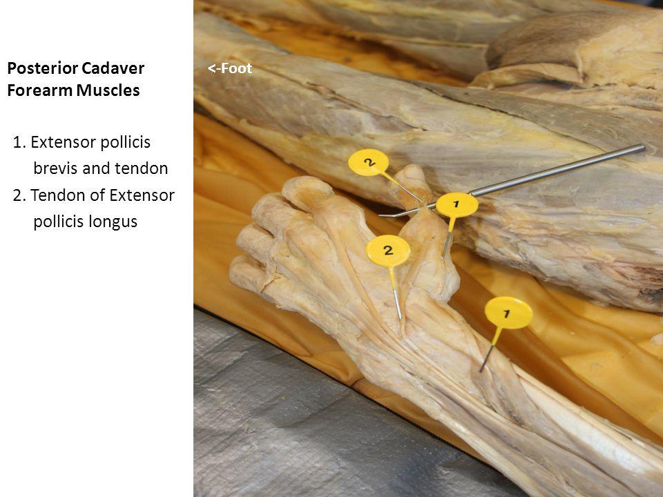 Posterior Cadaver Forearm Muscles 1.Extensor pollicis brevis and tendon 2.