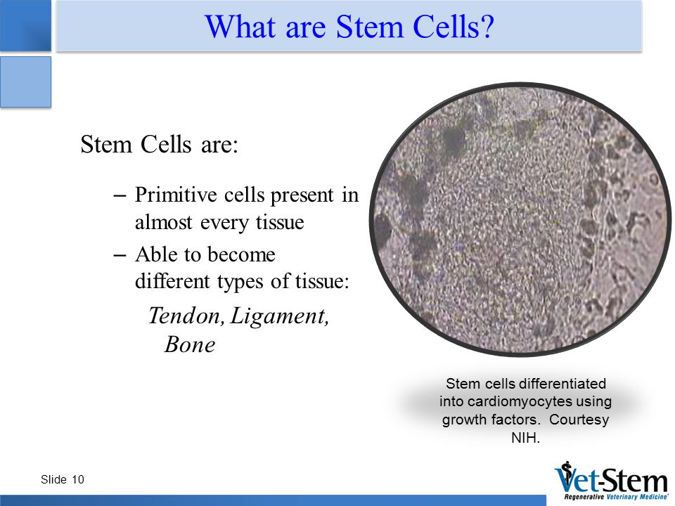 Slide 10 What are Stem Cells? Stem Cells are: – Primitive cells present in almost every tissue – Able to become different types of tissue: Tendon, Lig