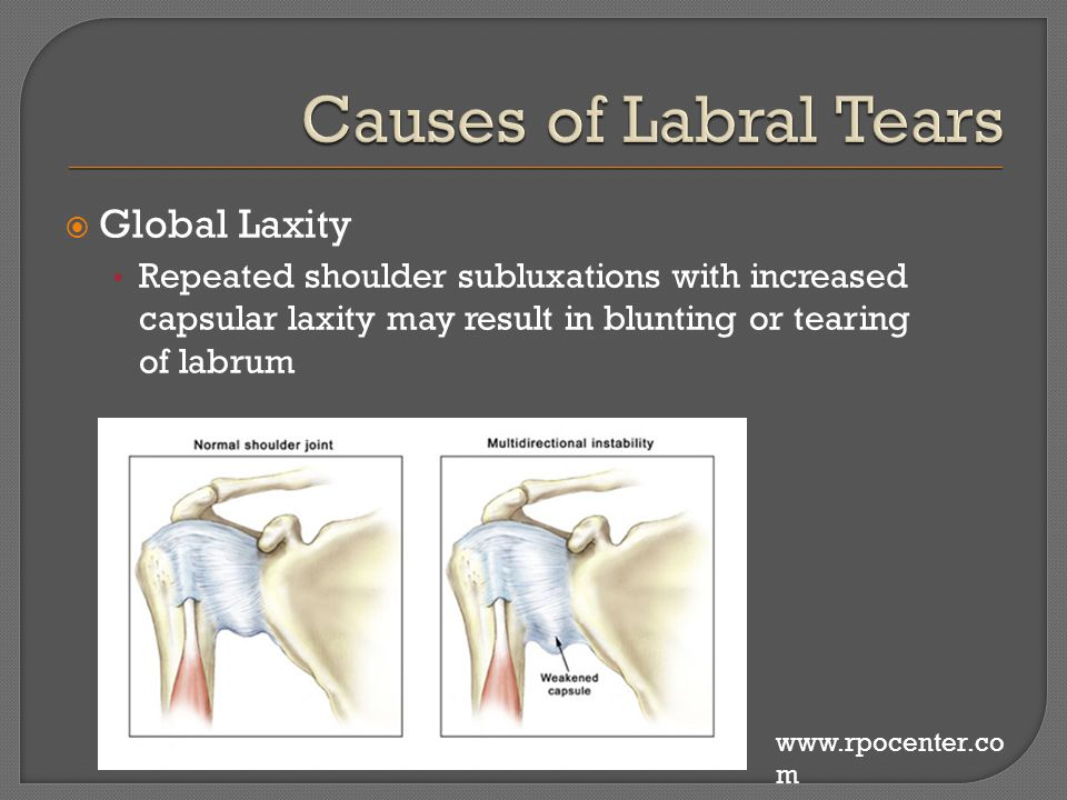  Global Laxity Repeated shoulder subluxations with increased capsular laxity may result in blunting or tearing of labrum www.rpocenter.co m