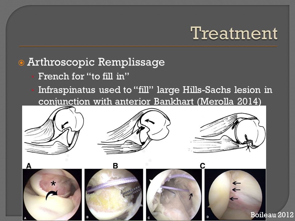 """ Arthroscopic Remplissage French for """"to fill in"""" Infraspinatus used to """"fill"""" large Hills-Sachs lesion in conjunction with anterior Bankhart (Meroll"""