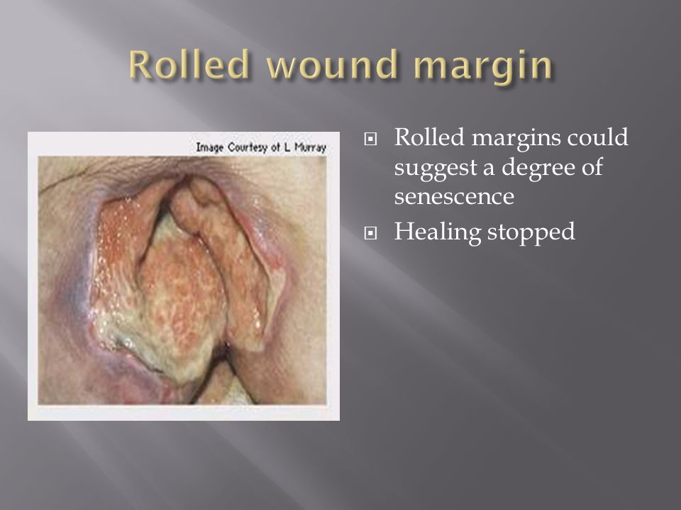  Rolled margins could suggest a degree of senescence  Healing stopped