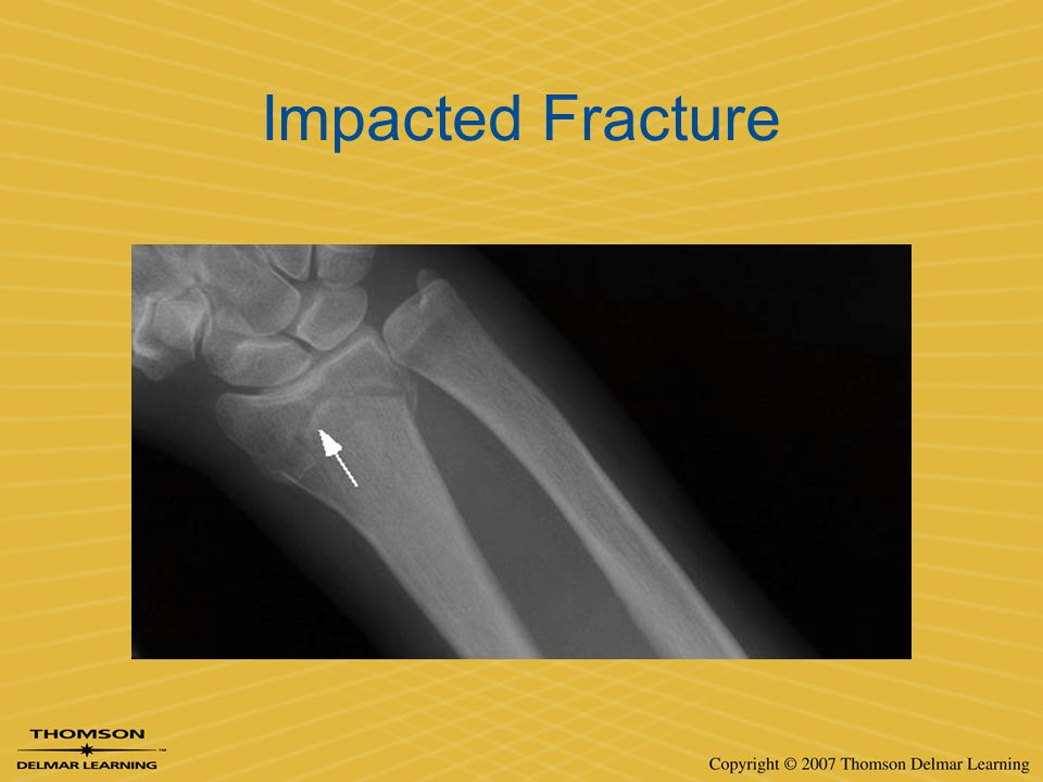 Impacted Fracture