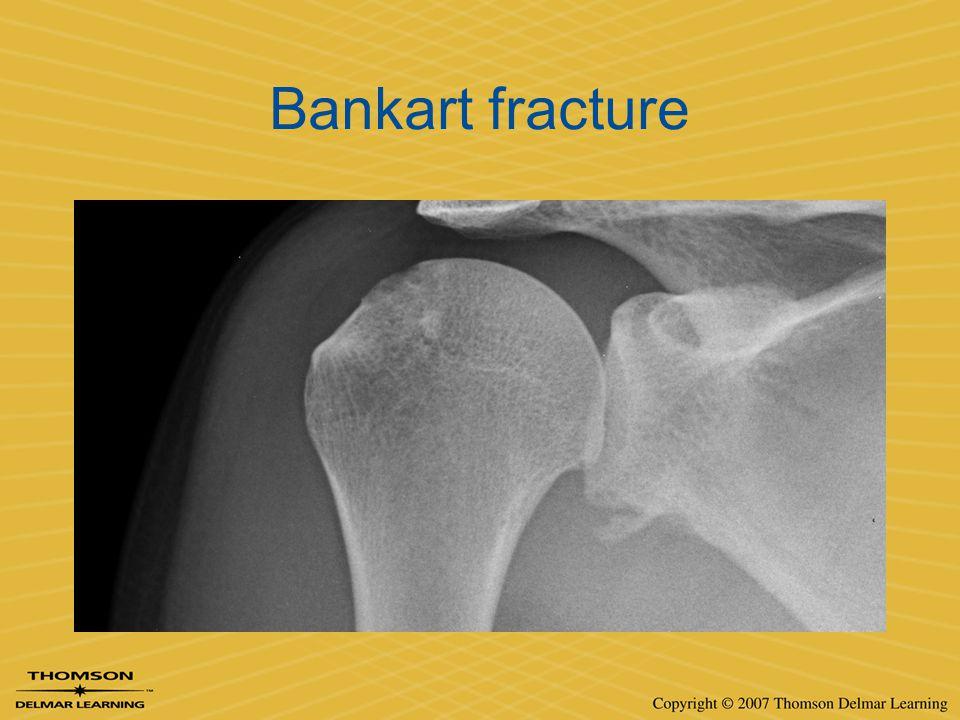 Bankart fracture