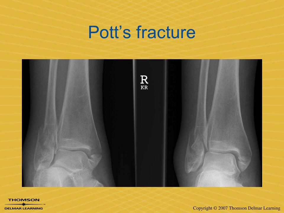 Pott's fracture