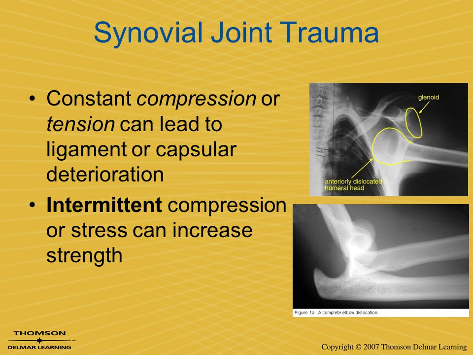 Synovial Joint Trauma Constant compression or tension can lead to ligament or capsular deterioration Intermittent compression or stress can increase s