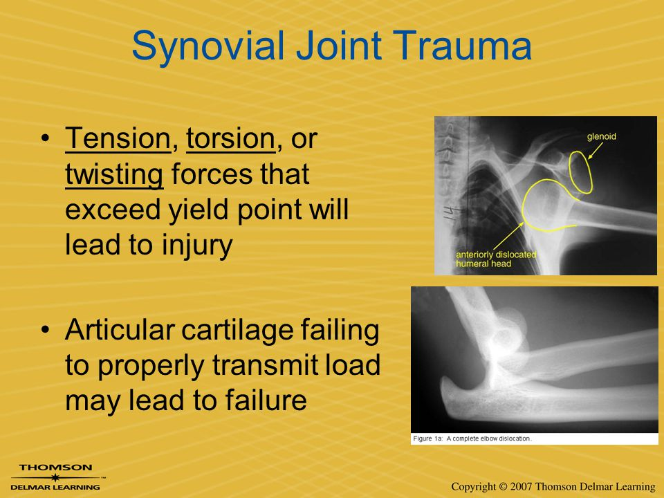 Synovial Joint Trauma Tension, torsion, or twisting forces that exceed yield point will lead to injury Articular cartilage failing to properly transmi