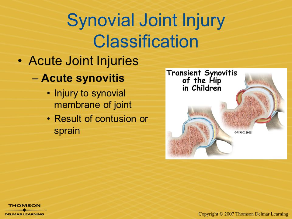 Synovial Joint Injury Classification Acute Joint Injuries –Acute synovitis Injury to synovial membrane of joint Result of contusion or sprain