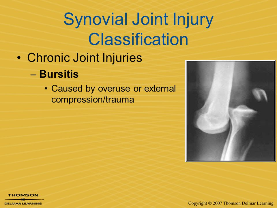 Synovial Joint Injury Classification Chronic Joint Injuries –Bursitis Caused by overuse or external compression/trauma