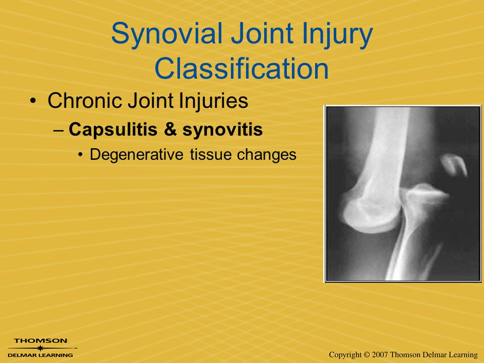 Synovial Joint Injury Classification Chronic Joint Injuries –Capsulitis & synovitis Degenerative tissue changes
