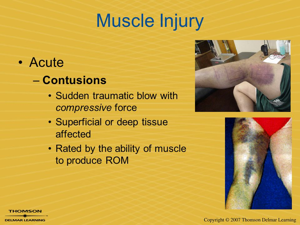 Muscle Injury Acute –Contusions Sudden traumatic blow with compressive force Superficial or deep tissue affected Rated by the ability of muscle to pro