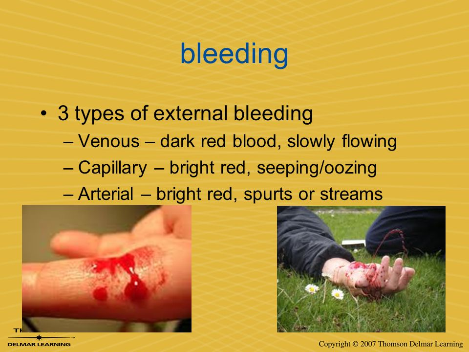 bleeding 3 types of external bleeding –Venous – dark red blood, slowly flowing –Capillary – bright red, seeping/oozing –Arterial – bright red, spurts