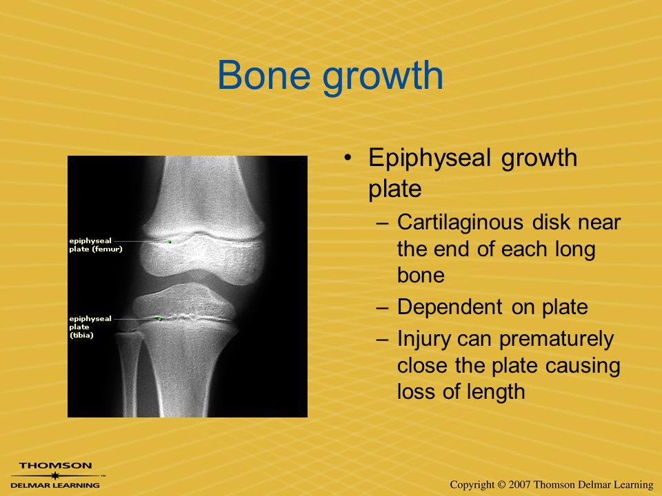 Bone growth Epiphyseal growth plate –Cartilaginous disk near the end of each long bone –Dependent on plate –Injury can prematurely close the plate cau