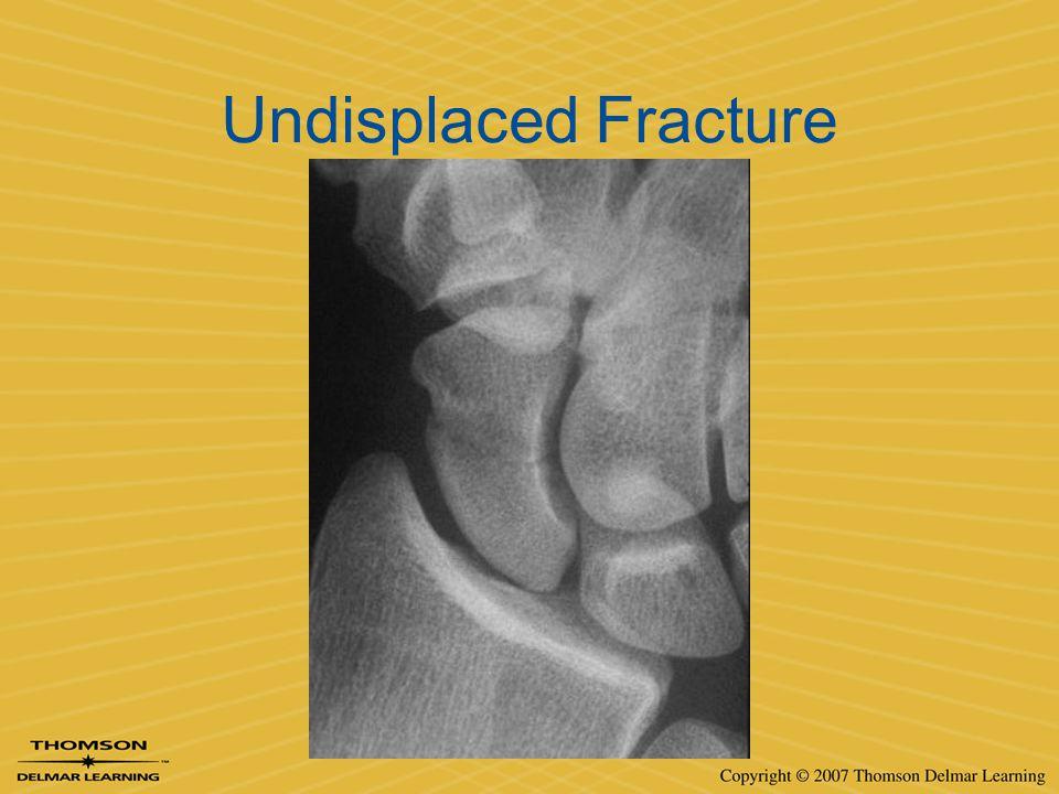 Undisplaced Fracture