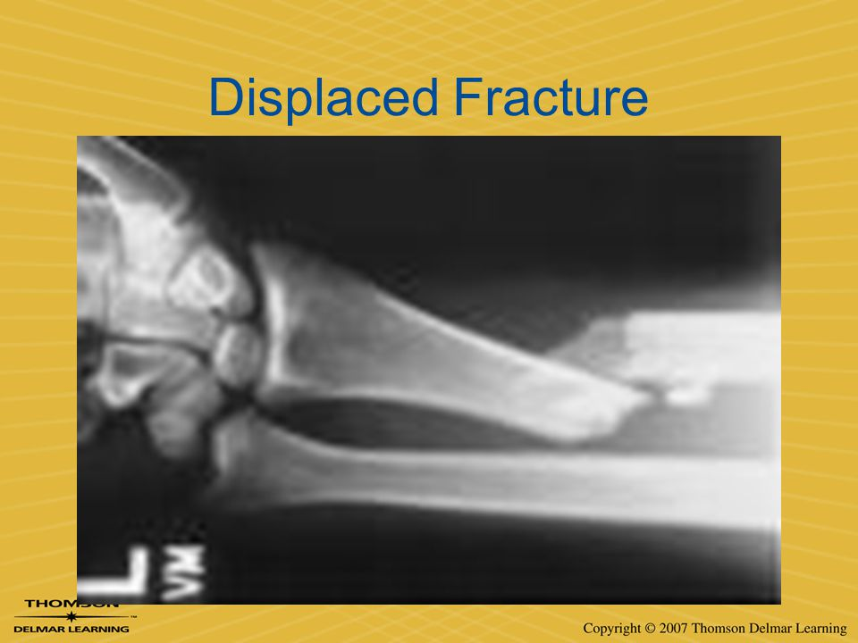 Displaced Fracture