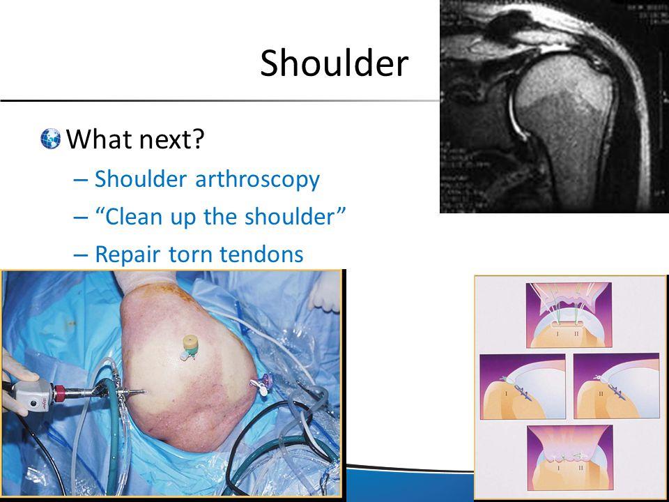 "Shoulder What next? – Shoulder arthroscopy – ""Clean up the shoulder"" – Repair torn tendons"