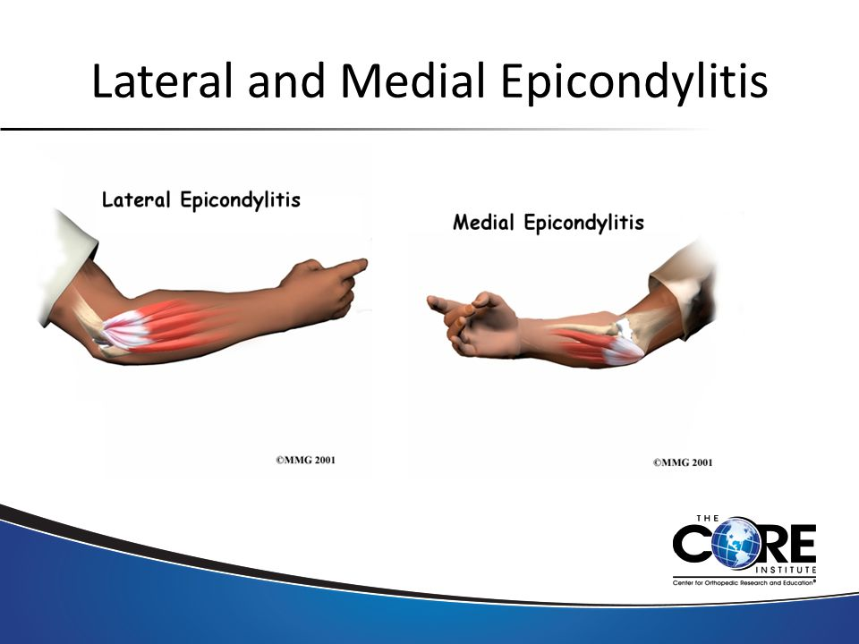 Lateral and Medial Epicondylitis