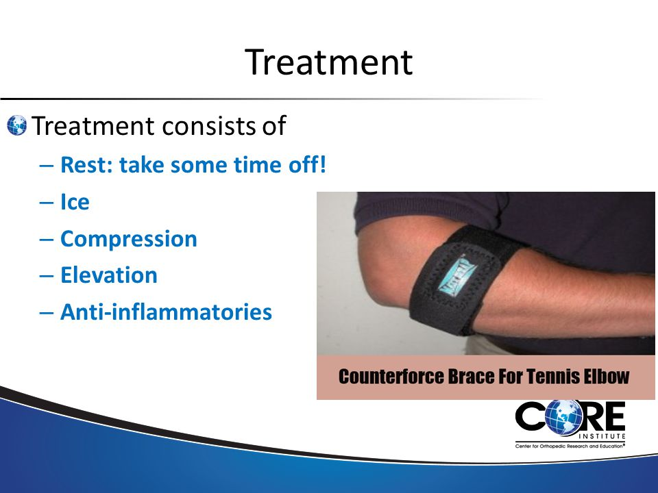 Treatment Treatment consists of – Rest: take some time off.
