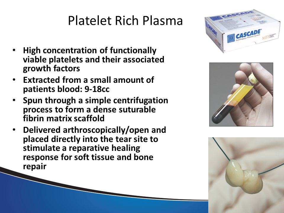 Platelet Rich Plasma High concentration of functionally viable platelets and their associated growth factors Extracted from a small amount of patients blood: 9-18cc Spun through a simple centrifugation process to form a dense suturable fibrin matrix scaffold Delivered arthroscopically/open and placed directly into the tear site to stimulate a reparative healing response for soft tissue and bone repair