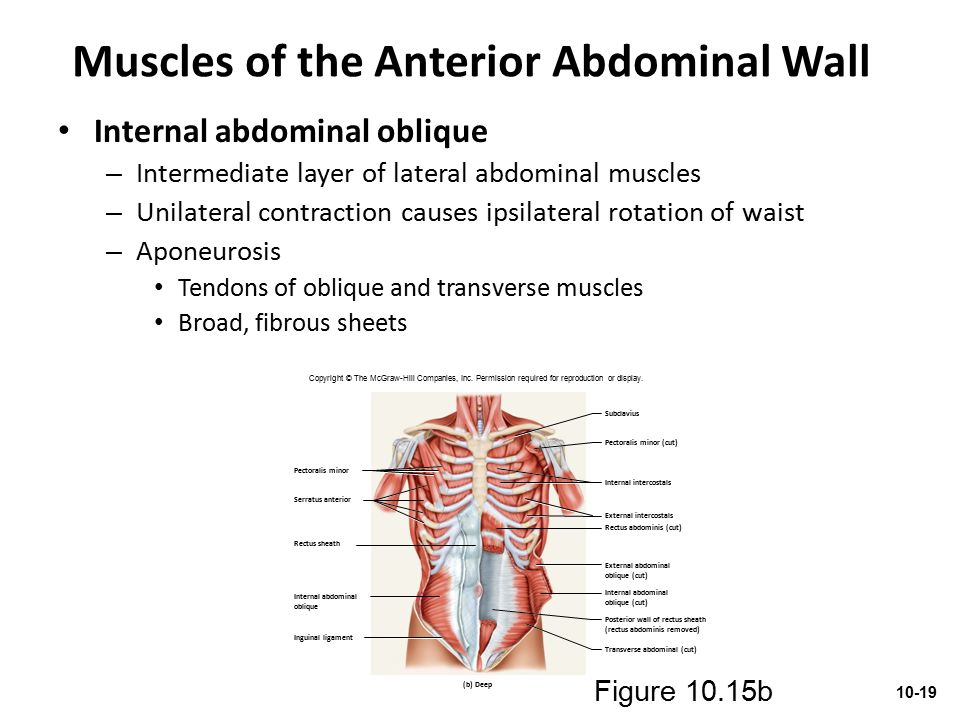Muscles of the Anterior Abdominal Wall Internal abdominal oblique – Intermediate layer of lateral abdominal muscles – Unilateral contraction causes ip