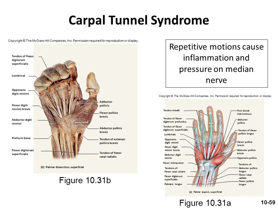 Carpal Tunnel Syndrome Repetitive motions cause inflammation and pressure on median nerve Figure 10.31a Figure 10.31b Copyright © The McGraw-Hill Comp