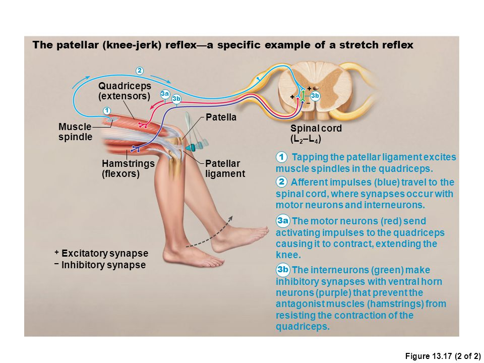 Figure 13.17 (2 of 2) The patellar (knee-jerk) reflex—a specific example of a stretch reflex Muscle spindle Quadriceps (extensors) Hamstrings (flexors