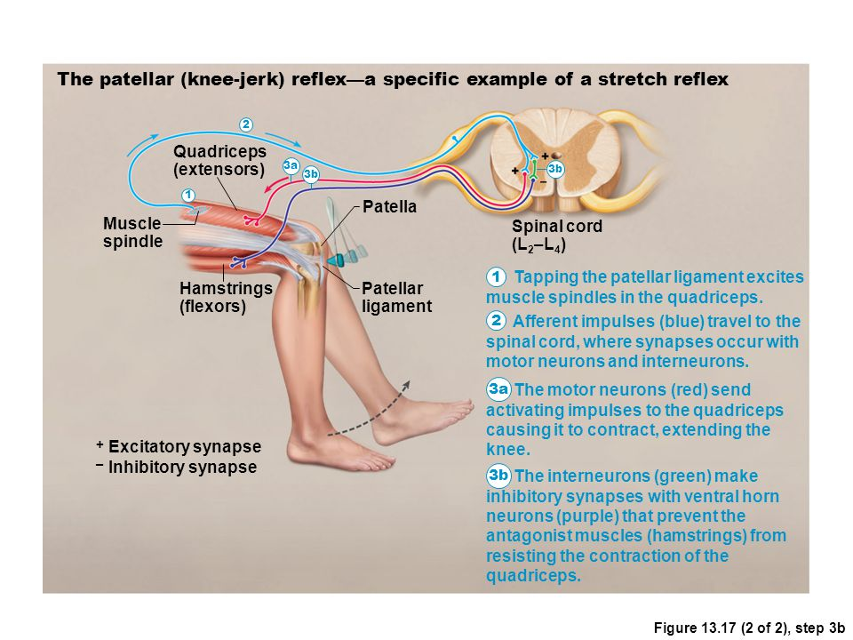 Figure 13.17 (2 of 2), step 3b The patellar (knee-jerk) reflex—a specific example of a stretch reflex Muscle spindle Quadriceps (extensors) Hamstrings