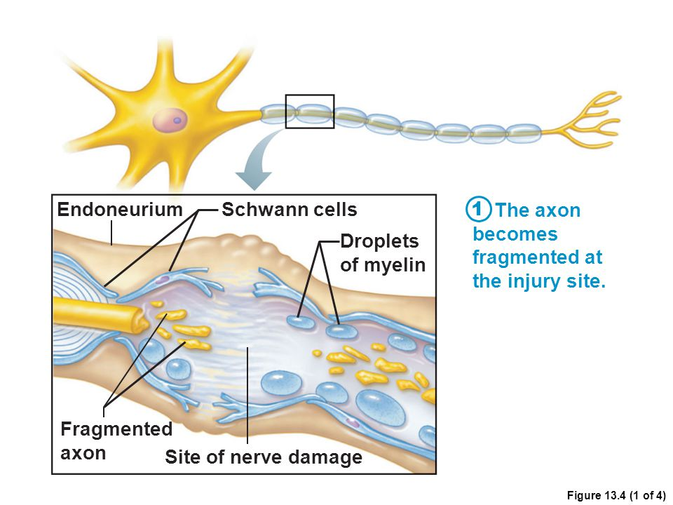 Figure 13.4 (1 of 4) Endoneurium Droplets of myelin Fragmented axon Schwann cells Site of nerve damage The axon becomes fragmented at the injury site.