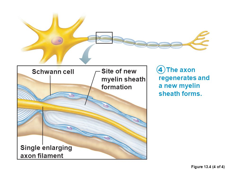 Figure 13.4 (4 of 4) Schwann cell Site of new myelin sheath formation 4 The axon regenerates and a new myelin sheath forms. Single enlarging axon fila