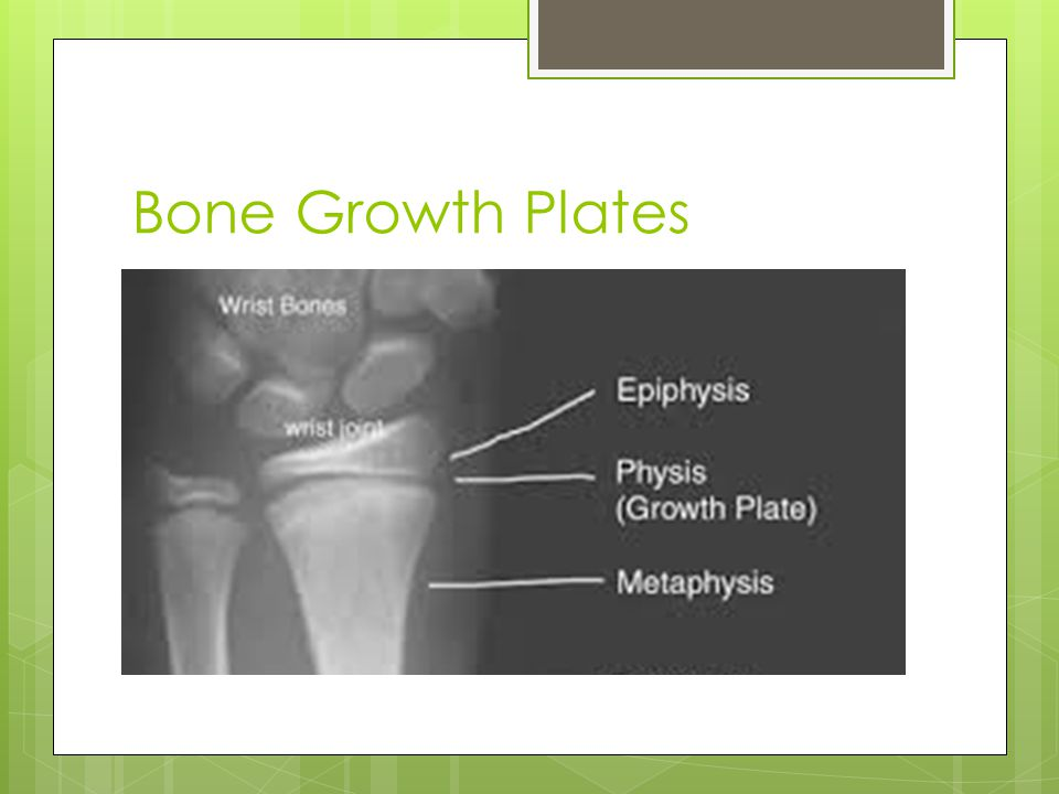 Bone Growth Plates