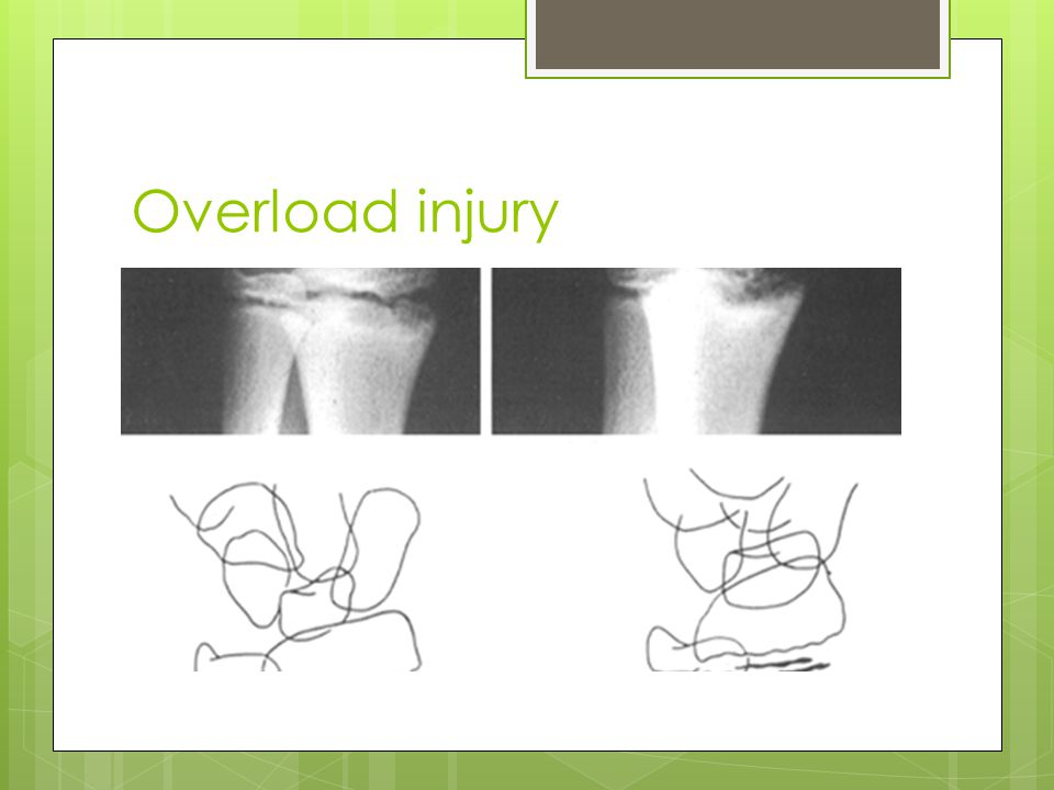 Overload injury