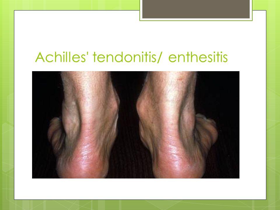 Achilles tendonitis/ enthesitis