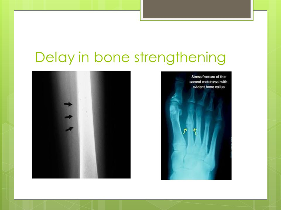 Delay in bone strengthening