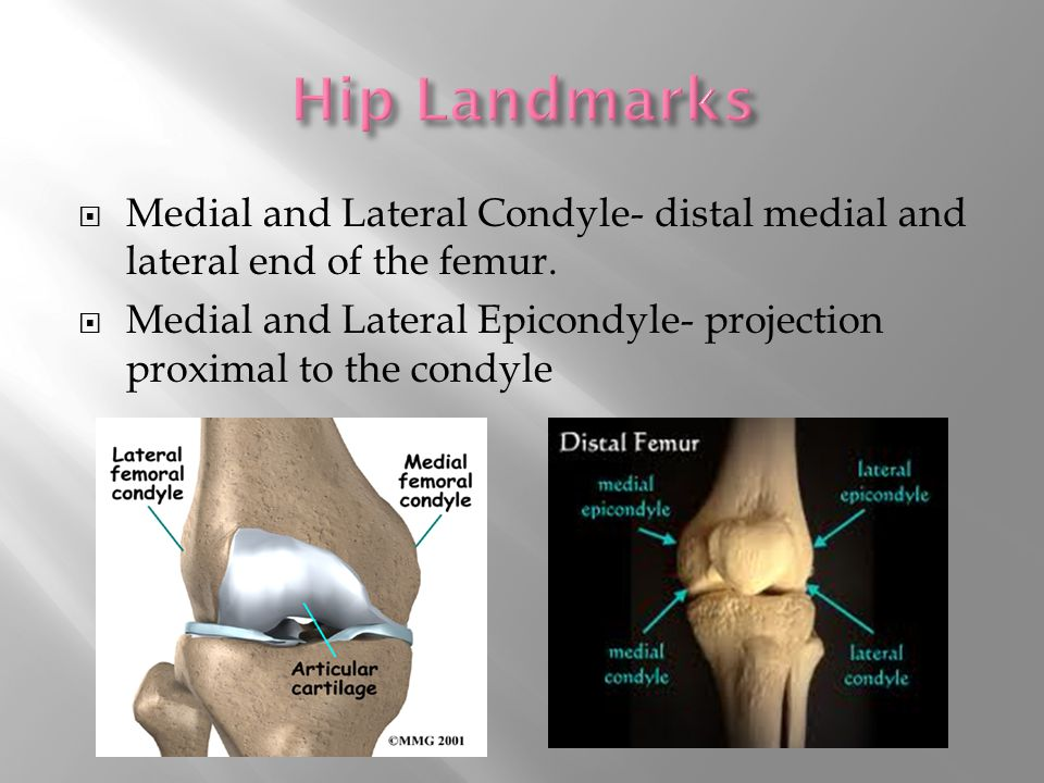  Medial and Lateral Condyle- distal medial and lateral end of the femur.