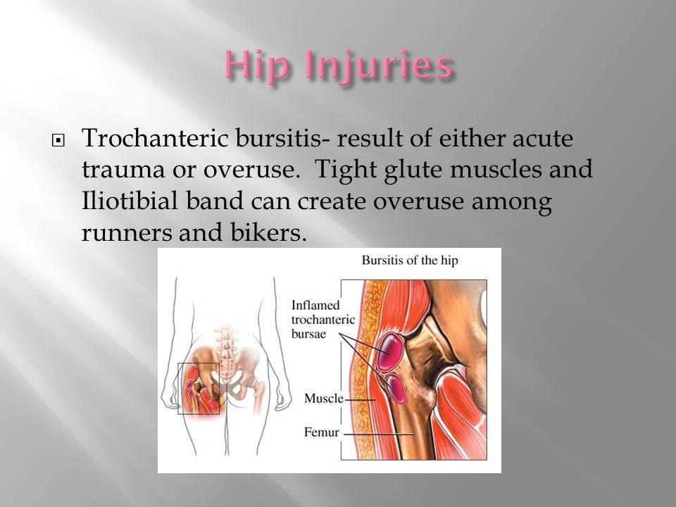  Trochanteric bursitis- result of either acute trauma or overuse.
