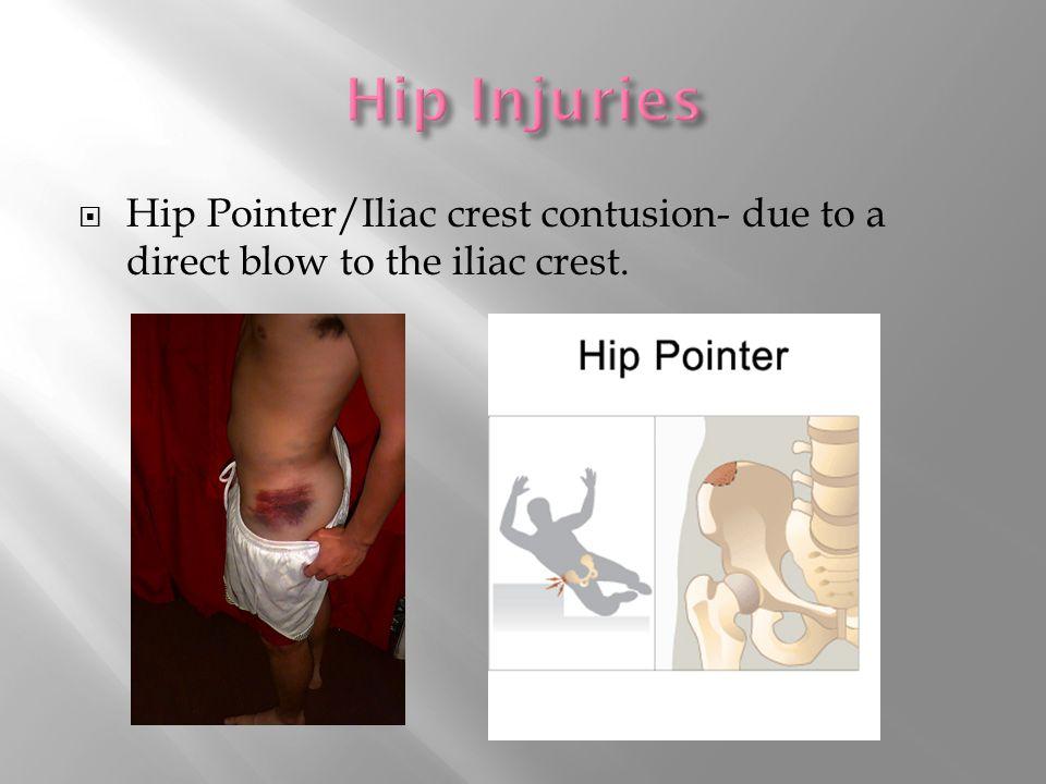  Hip Pointer/Iliac crest contusion- due to a direct blow to the iliac crest.