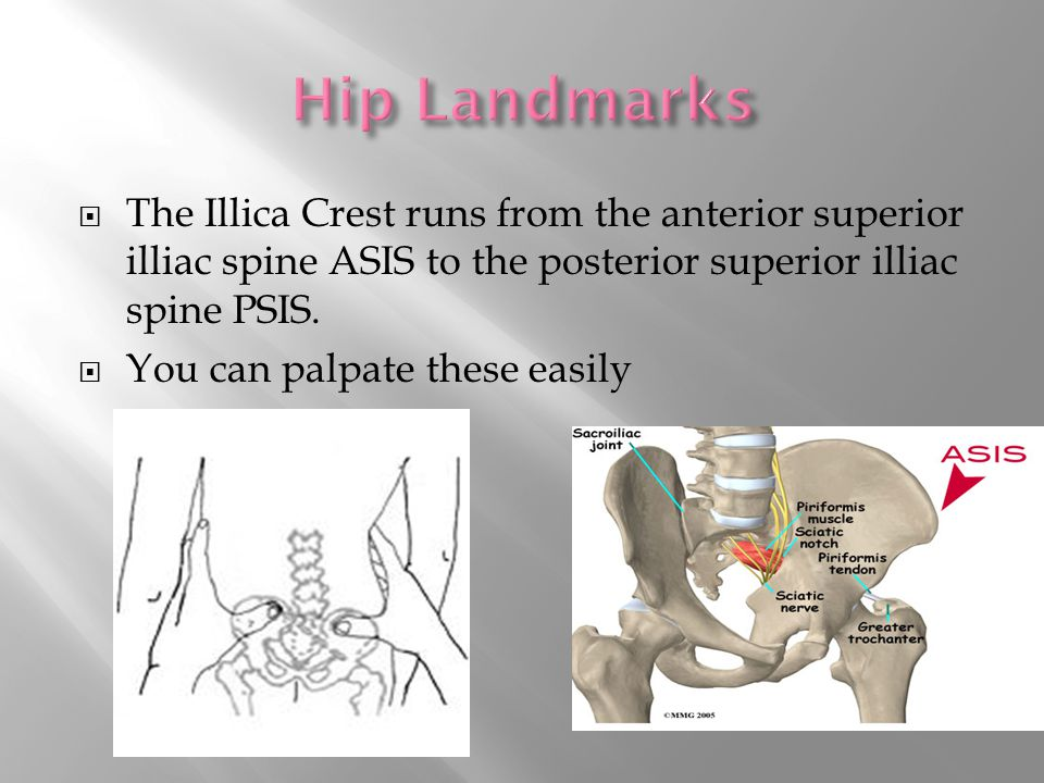  The Illica Crest runs from the anterior superior illiac spine ASIS to the posterior superior illiac spine PSIS.