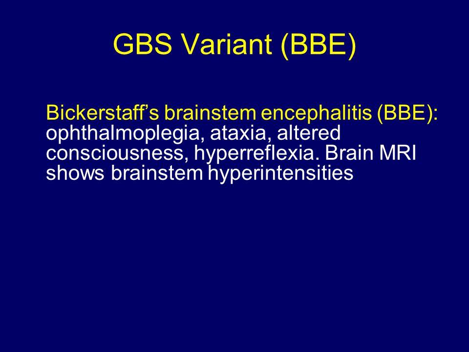 GBS Variant (BBE) Bickerstaff's brainstem encephalitis (BBE): ophthalmoplegia, ataxia, altered consciousness, hyperreflexia.