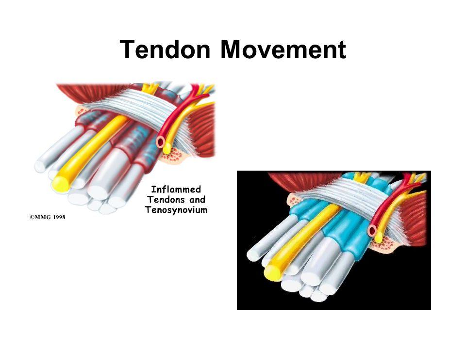 Tendon Movement