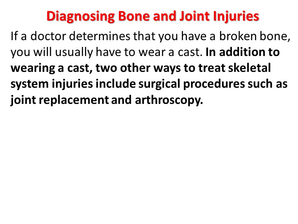 Diagnosing Bone and Joint Injuries If a doctor determines that you have a broken bone, you will usually have to wear a cast. In addition to wearing a