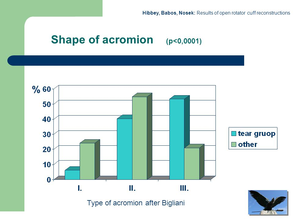 Hibbey, Babos, Nosek: Results of open rotator cuff reconstructions Shape of acromion (p<0,0001) % Type of acromion after Bigliani