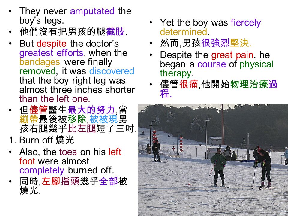 They never amputated the boy's legs. 他們沒有把男孩的腿截肢.