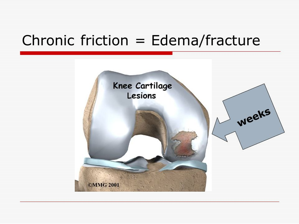 Chronic friction = Edema/fracture weeks