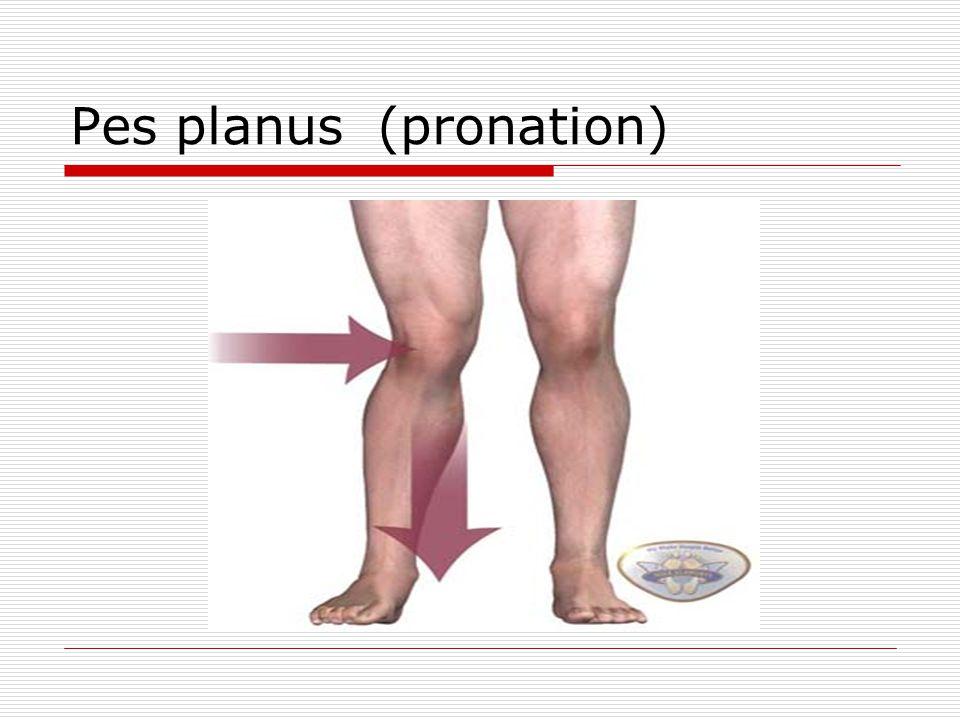 Pes planus (pronation)