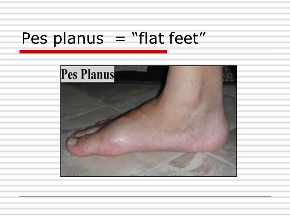 Pes planus = flat feet