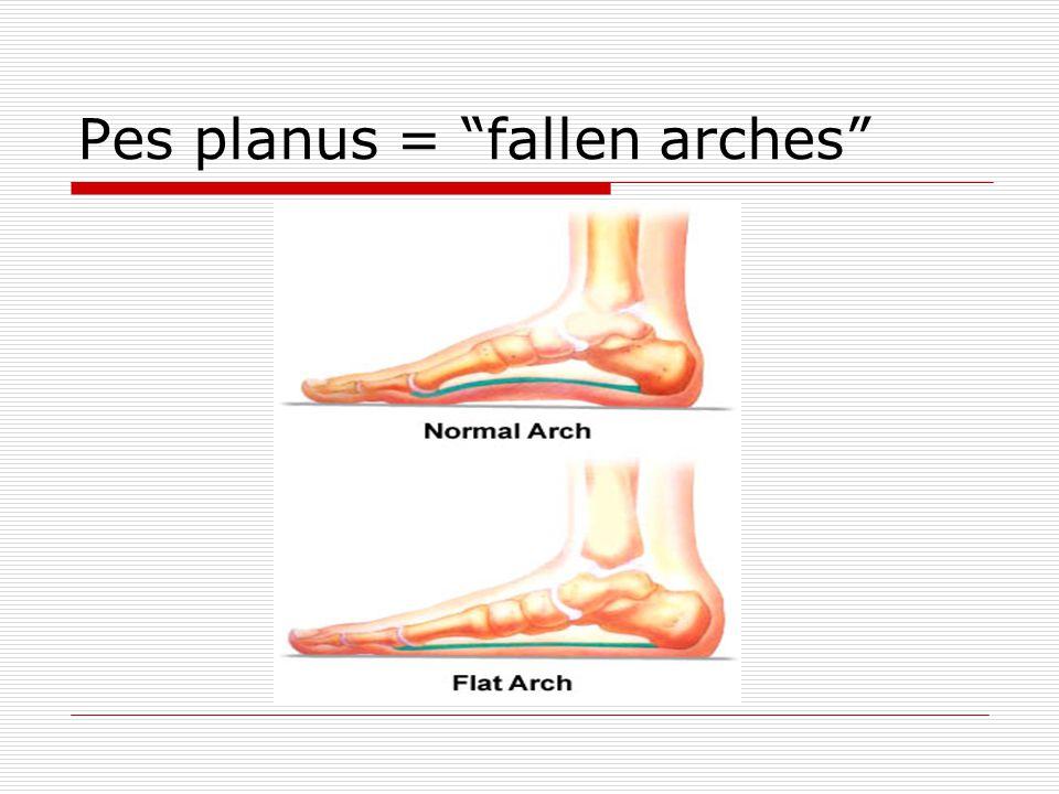 Pes planus = fallen arches