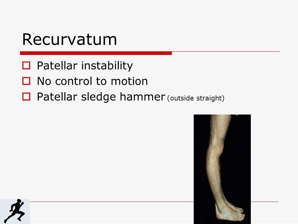 Recurvatum  Patellar instability  No control to motion  Patellar sledge hammer (outside straight)