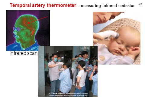23 Temporal artery thermometer – measuring infrared emission Infrared scan