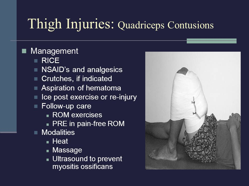 Hip and Groin Injuries Groin Strain Etiology Injury usually occurs to the adductor longus MOI = running, jumping, or twisting with hip external rotation; over-stretching; or too forceful contraction Signs and Symptoms Sudden twinge or tearing during movement Pain, weakness, and internal hemorrhaging