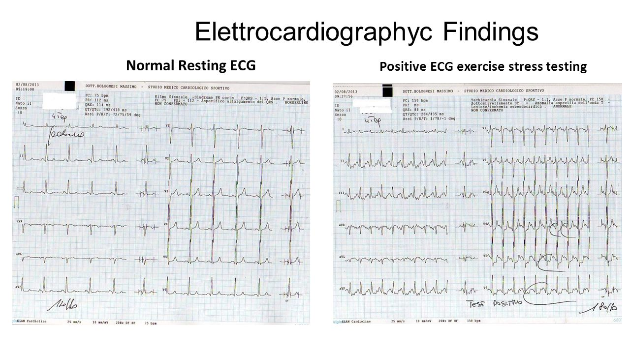Elettrocardiographyc Findings Normal Resting ECG Positive ECG exercise stress testing